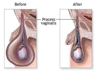 erezione dopo lintervento di idrocele)
